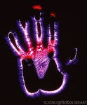 Фото биополя руки человека. Биополевая диагностика состояния здоровья.